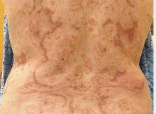 حالة نادرة.. أشكال غريبة تغطي جسم امرأة قادت لتشخيصها بسرطان الشرج