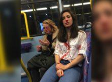 Lesbian couple viciously beaten: Five teens held